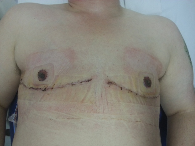 [image: a freshly revealed chest post reconstruction, with two curved incisions below the grafted nipples}